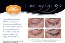 Contact Urban Eyes Optometry to discuss Latisse: 415.863.1818 or urbaneyes@aol.com